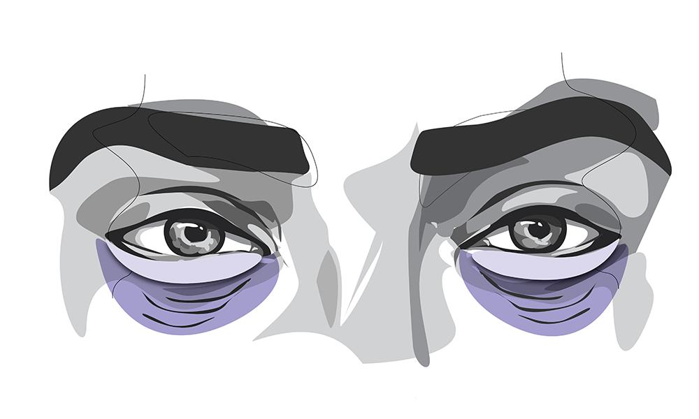 Augenringe entstehen meist durch durch überschüssige Haut.