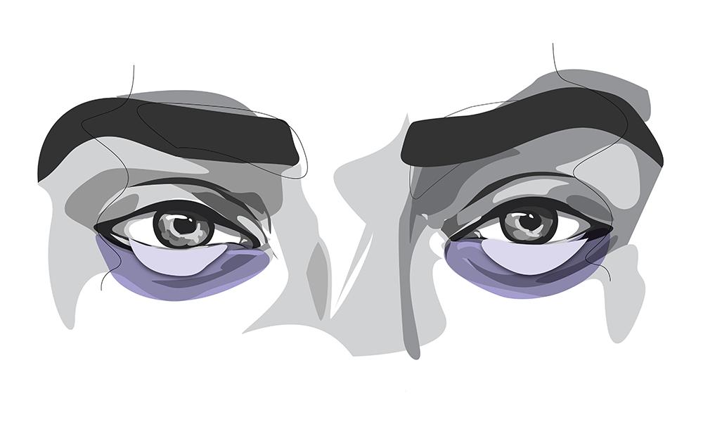 Schatten unter den Augen können häufig Veranlagung sein.