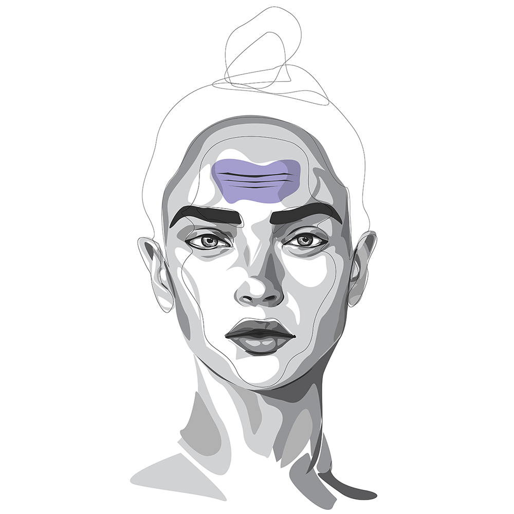 Stirnfalten-lassen-sich-mit-Botox-gut-behandeln
